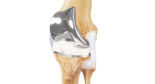 kraakbeen in de knie